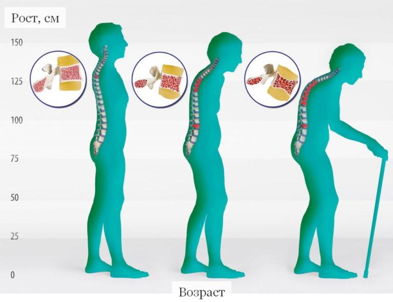 Диагностика и симптомы остеопороза